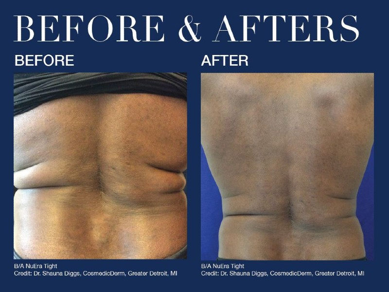 before-after-skin-color-1