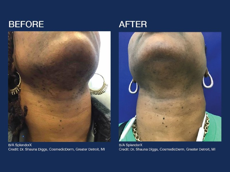 before-after-skin-color-2